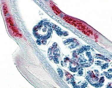 wolbachia en rouge dans ce nematode